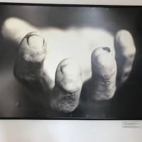 Srebrenica il genocidio dimenticato nel cuore dell'Europa. Memoriale di Potocari: la foto di Tarik Samarah rimanda al prelievo di DNA necessario per riconoscere le vittime.